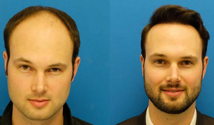 نکات مهم قبل و بعد از کاشت مو