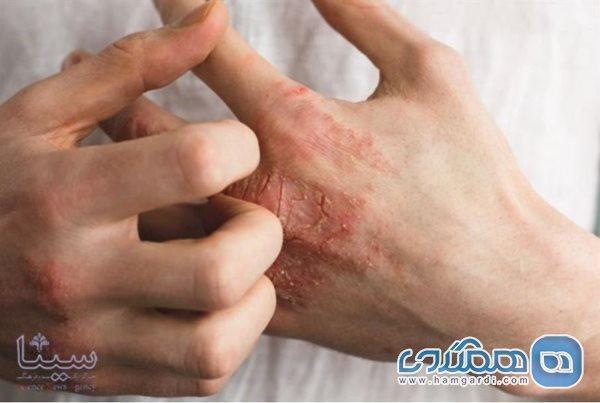 ترکیب حساسیت فصلی و استفاده دائم از ضدعفونی کننده ها
